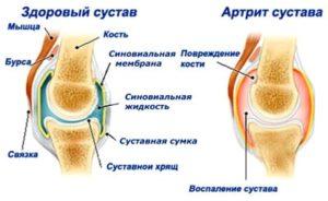 Как могут развиваться симптомы артрита коленного сустава