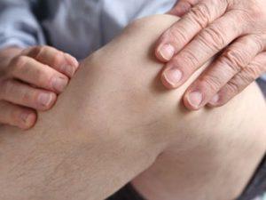 Какие могут быть симптомы при артрите коленного сустава