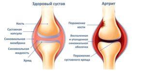 Детский артрит коленного сустава