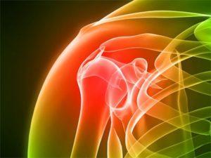 Советы о том как лечить артрите плечевого сустава