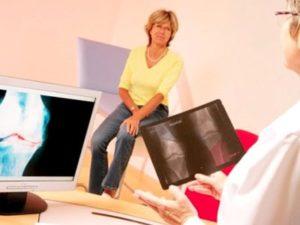 Советы врача при артрите коленного сустава