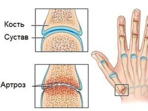 Как развивается артроз пальцев рук