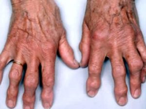 Каким может быть артроз пальцев рук