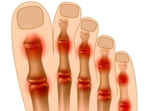 Места развития артрит пальцев ног