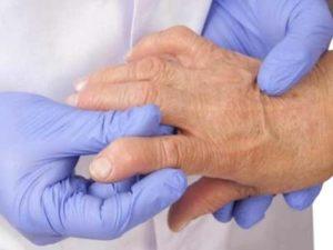 Советы о том что из себя представляет серопозитивный ревматоидный артрит