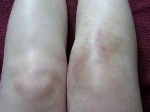 Советы о том какие могут быть симптомы при артрите у детей