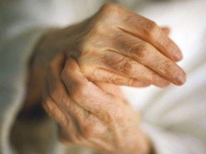 Советы о том какие существуют методы лечения при артрите пальцев рук