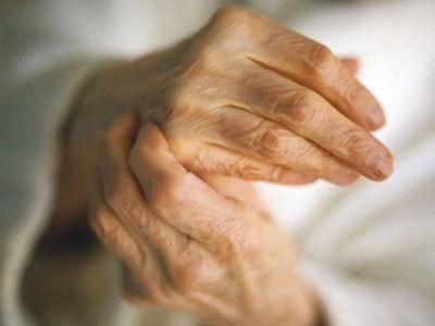 можно вылечить артрит пальцев рук