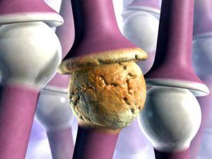 Какие бывают причины при артрите