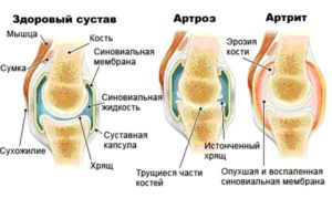 Рисунок показывает отличие артрита от артроза