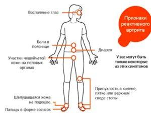 Советы какие бывают признаки при реактивном артрите