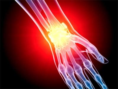 Почему болит кисть правой руки возможные причины и лечение