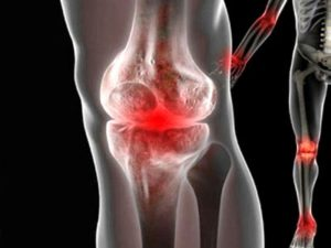 Советы о том что такое реактивный артрит