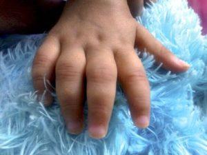 Советы о том как проявляется ювенильный ревматоидный артрит