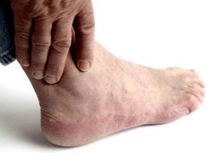 Советы о том какие бываю степени при артрите