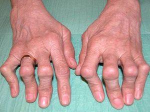 Советы о том какие бывают разновидности заболевания при артрите