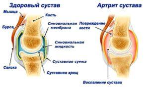 Советы о том какие бывают симптомы при артрите