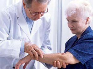 Советы по осмотру руки при артрите лучезапястного сустава