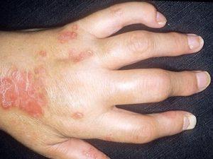 Советы о том что из себя представляет псориатический артрит на руке