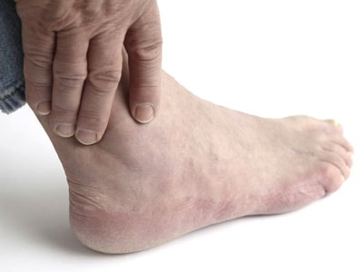 Артрит левого голеностопного сустава лечение