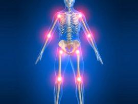 Советы о том что такое артрит МКБ 10