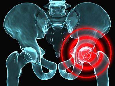 Артроз тазобедренного сустава - коксартроз