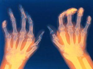 Советы о том что такое ревматоидный артрит МКБ 10