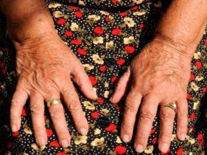 Советы о том как лечить артрит
