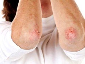 Советы о том как лечить псориатический артрит
