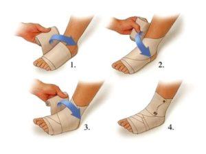 Советы о том как накладывать эластичный бинт при артрите голеностопного сустава