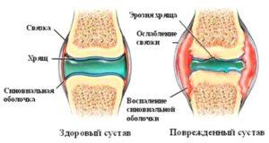 Советы о том как разрушается сустав при недифференцированном артрите