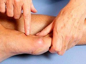 Советы по лечению стопы при артрите