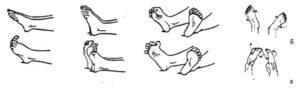 Советы по лфк для стоп при артрите