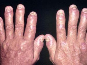 Советы по симптомам при псориатическом артрите кистей