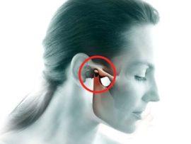 Советы о том что такое артрит челюстного сустава