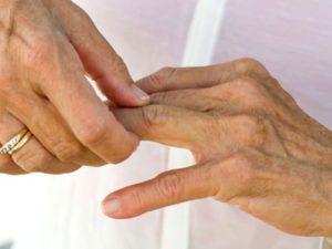 Советы о том что такое острый артрит