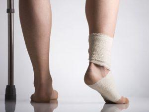 Советы о том как избежать артроза стопы при травмах