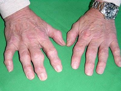 как узнать что артрит