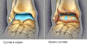 Советы о том как может выглядить сустав на третей сдидии при артрозе голеностопного сустава
