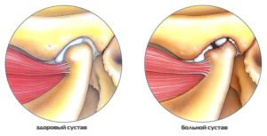 Советы о том как развивается болезнь при артрите челюстного сустава