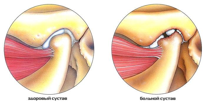 Височно-нижнечелюстного сустава артрит как лечить