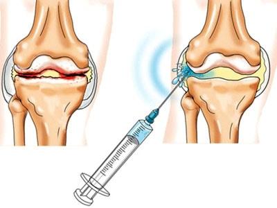 лечение артрита голенностопных суставов