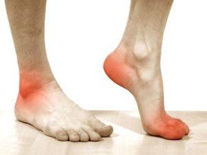 Советы о том какие бывают боли при артрозе стопы