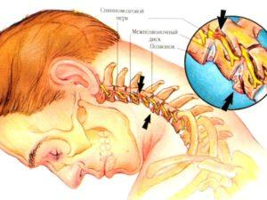 Советы о том какие бывают причины при унковертебральном артрозе шейного отдела позвоночника