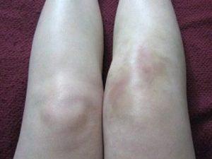 Советы по клиническим проявления при артрозе суставов