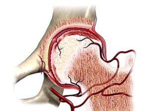 Нарушение кровоснабжения в головке бедренной кости при деформирующем артрозе тазобедренного сустава