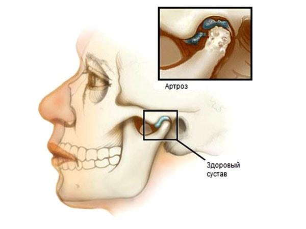 артроз височно-нижнечелюстного сустава стадии
