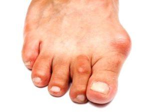 Советы о том что такое артроз большого пальца ноги