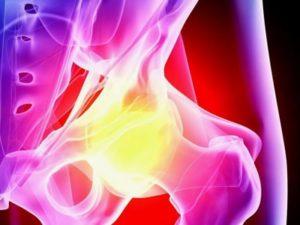 Советы о том что такое деформирующей артроз тазобедренного сустава