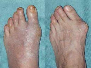 Советы о том каким бывает деформация стопы при артрозе большого пальца ноги
